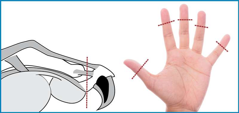 Comparaison de l'amputation de la 3e phalange du chat avec une main humaine.